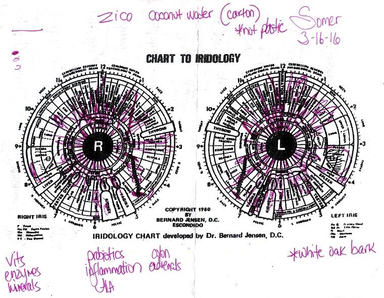 As+Hannah+read+my+eye%2C+she+scribbled+notes+onto+a+black+and+white+print+out+of+the+Chart+to+Iridology.+The+marks+located+in+the+top+left+corner+indicate+the+intensity+of+each+characteristic+identified+in+the+iris.+The+shaded+shape+indicates+a+more+profound+strength+or+damage.+The+middle+image+represents+a+moderate+problem+and+the+bottom+incomplete+shape+represents+a+problem+in+it%27s+beginning+stages.+As+she+read+my+eye%2C+she+wrote+names+of+potential+vitamins+that+could+help+and+cure+my+medical+needs.+At+the+end+of+the+reading%2C+she+took+the+list+and+conducted+a+muscle+test.